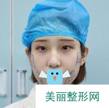 面部脂肪填充手术后面部饱满了妈妈说我有了福相
