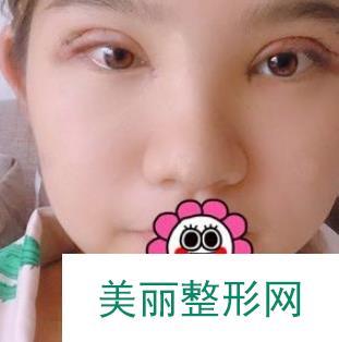 隆鼻术后改善了短鼻梁我也可以显摆我的翘鼻啦