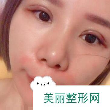 武汉蜜司整形杨蓉双眼皮