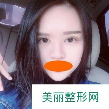 北京联合丽格双眼皮