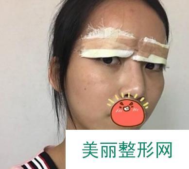 苏州爱思特割双眼皮案例