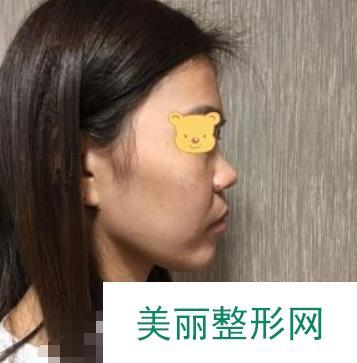 田孝臣鼻综合案例