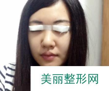 埋线双眼皮第五天效果前后对比图